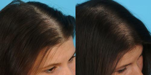 алопеция выпадение волос у женщин